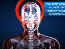 Sonata's Alzheimer's & Dementia Resource Center Video 2020 Conference